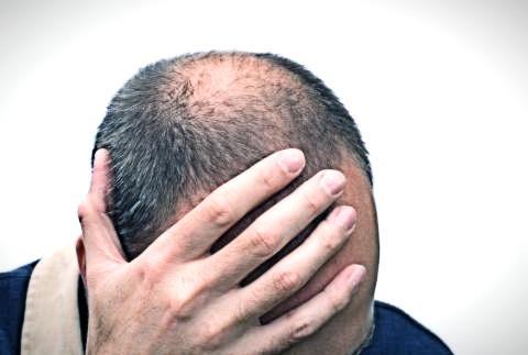 Metodi di prevenzione di perdita dei capelli